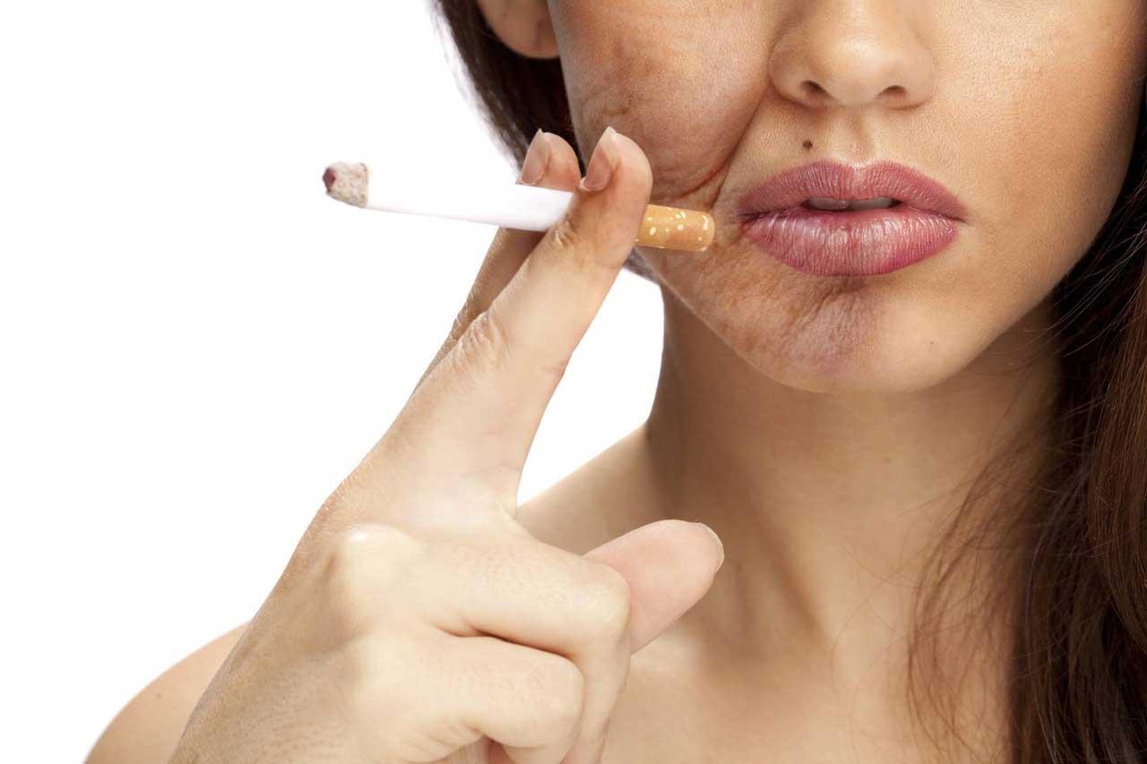 سیگار کشیدن یا در معرض دود سیگاریها بودن، سبب پیری زودرس و عوارض شدید پوست صورت و اندام افراد میشود.