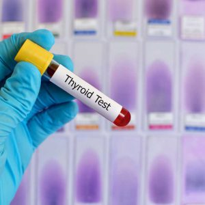 هر فرد باید پنج سال یکبار،آزمایش تیروئید بدهد