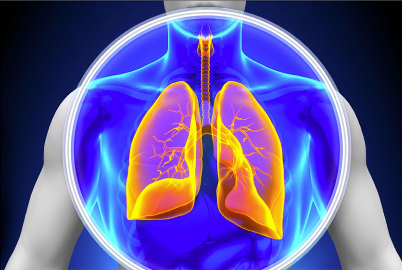 درمان سرطان ریه