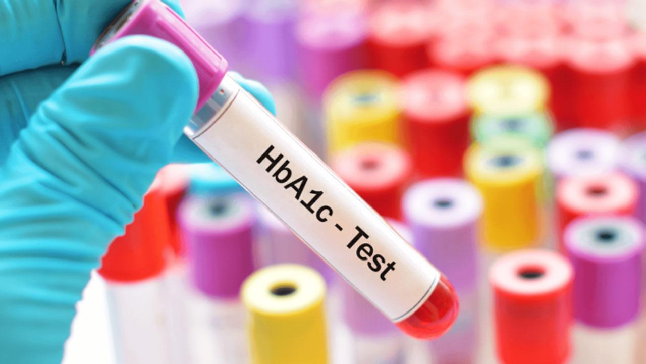آزمایشات تشخیص دیابت
