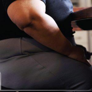 چاقی بیمارگونه چیست؟