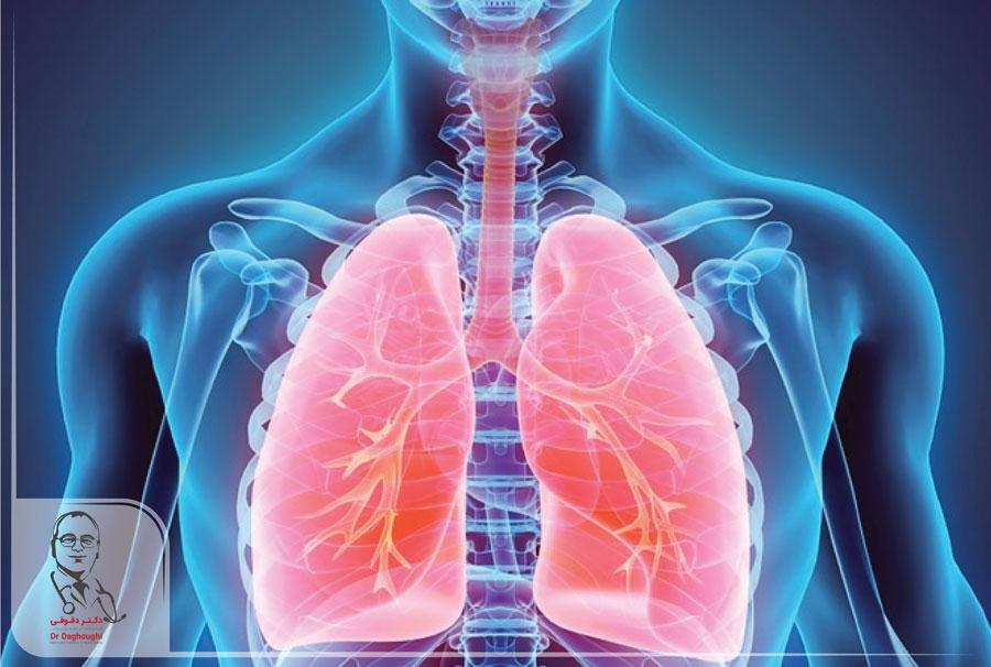 تأثیر چاقی بر بیماری انسدادی مزمن ریه یا COPD