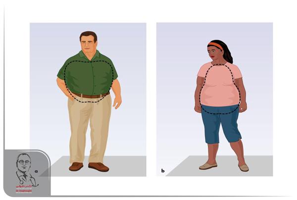 چاقی سیبی شکل و گلابی شکل