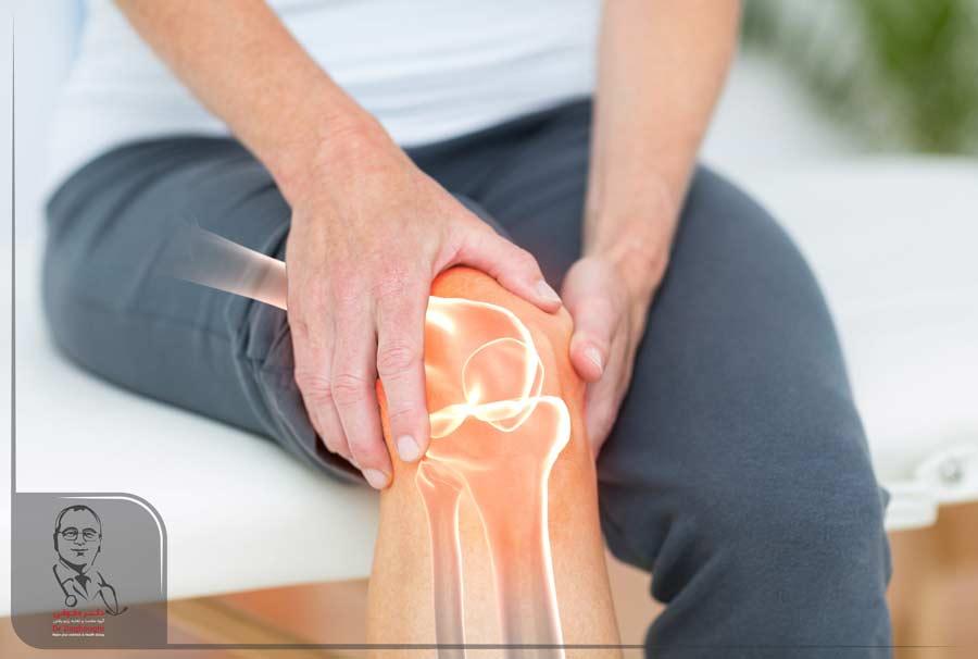 6 راه برای درمان آرتروز زانو
