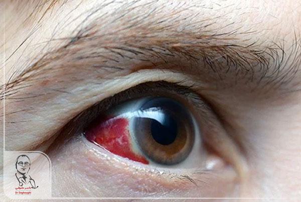 خون در چشم یا hyphema