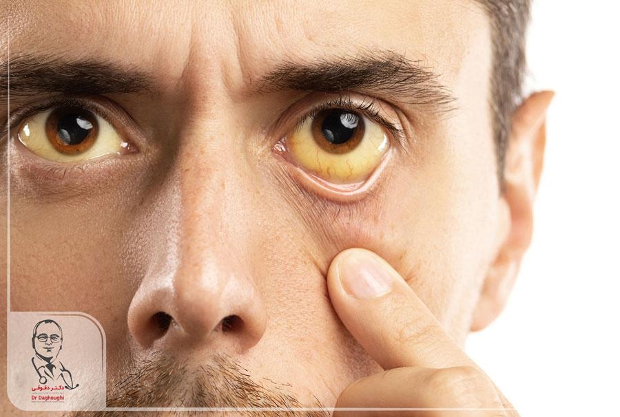 زردی پوست و علل آن